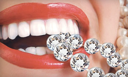$68 for an In-Home Icing Teeth Whitening from Bling Dental ($199 Value)