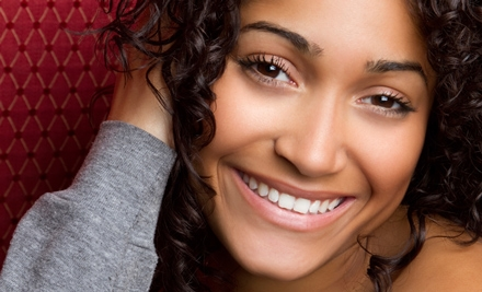 $69 for Teeth Whitening at Affinity Salon ($159 Value)